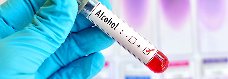 Drug and Alcohol Testing
